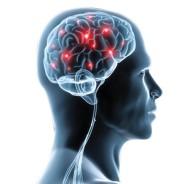 Oplossing voor migraine
